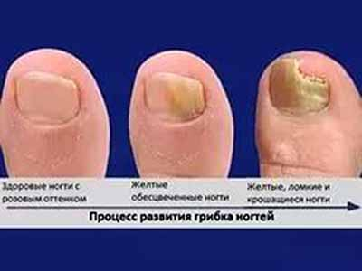 Стадии заболевания грибком ногтей