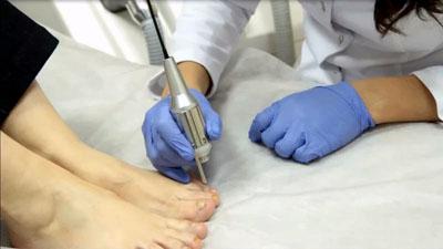 Лазер против грибка ногтей
