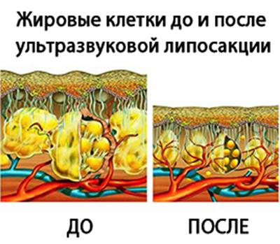 Разрушение жировых клеток ультразвуком