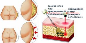 Традиционная и лазерная липосакция