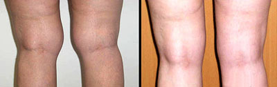 Лазерная липосакция на коленях