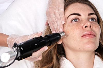 Лазер Picosure при лечении морщин и рубцов постакне