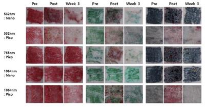 Фотографии с результатами удаления красных, зеленых и черных пигментов до начала лазеротерапии, сразу и спустя 3 недели после процедуры