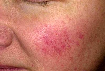 Причины и лечение красных щек