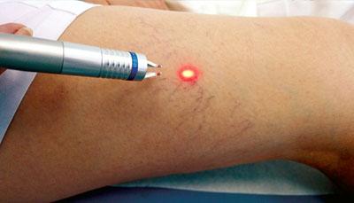 Сосудистый лазер для удаления сосудистых патологий