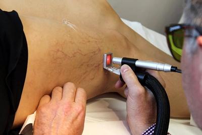 Лазерная терапия расширенных сосудов